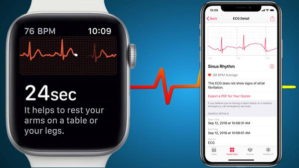 App ECG di Apple Watch Serie 4