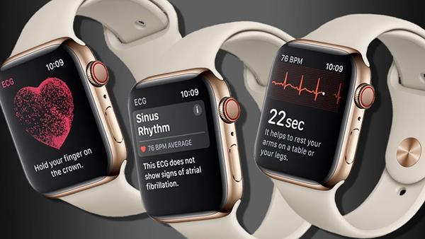Come usare la nuova App ECG di Apple Watch Serie 4